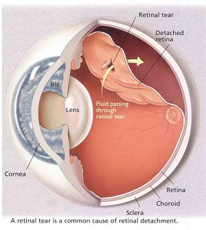 floaters and retinal detachment